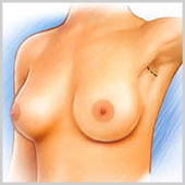 incision axillaire