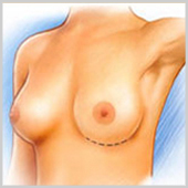 incision inframammaire