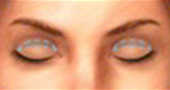 Surgery of the Upper Eyelid