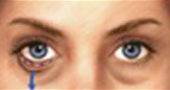 Surgery of the Lower Eyelid