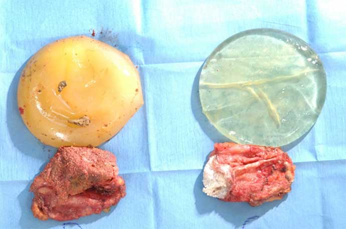 Silicone implants and calcified fibrous capsule