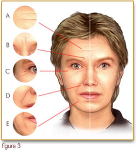 Facial rejuvenation by injection...